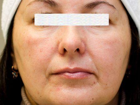 Гиалуроновая кислота для увеличения губ
