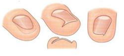 Действенное средство от грибка ногтей отзывы