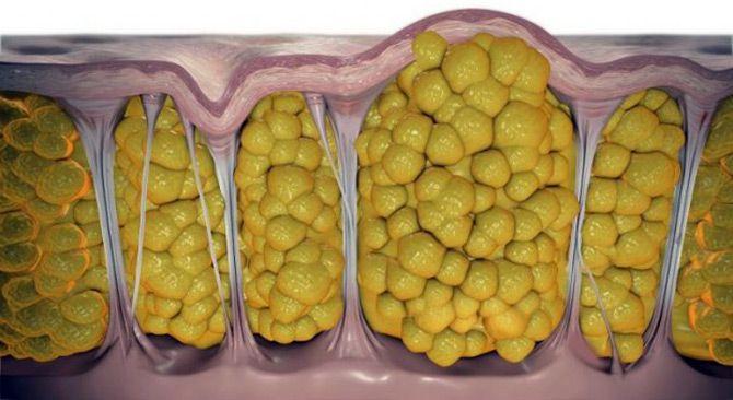 Папилломы на коже - причины и лечение (фото)