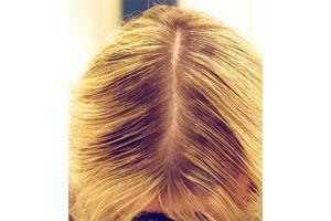 аптечные средства для роста волос дешевые